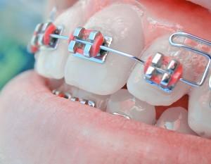 ortodonta, ortodoncja, ortodonci